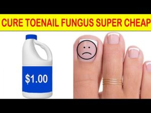 CURE TOENAIL FUNGUS:  PAY LESS WITH BETTER RESULTS WITH HOUSEHOLD ITEM – Dr Alan Mandell, DC